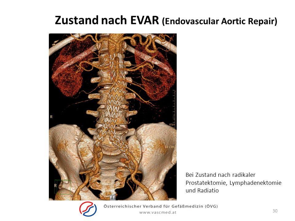 Zustand nach EVAR (Endovascular Aortic Repair) Bei Zustand nach radikaler Prostatektomie, Lymphadenektomie und Radiatio 30