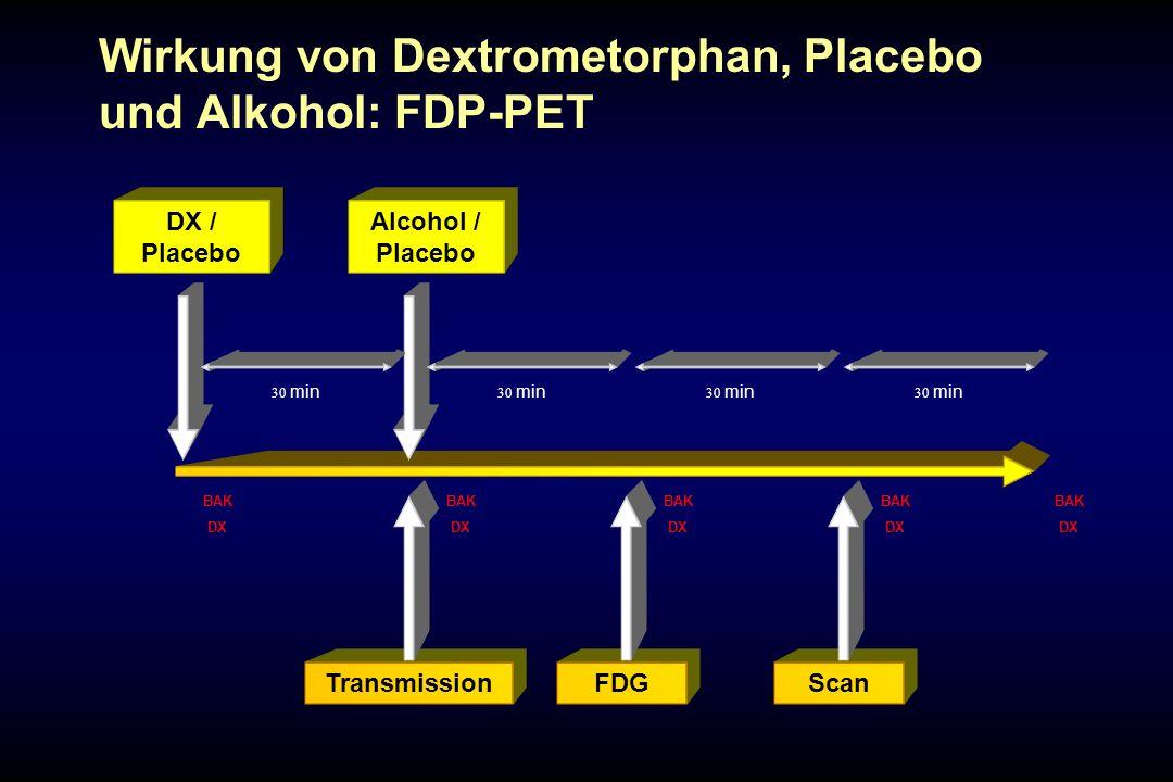 Wirkung von Dextrometorphan, Placebo und Alkohol: FDP-PET DX / Placebo Alcohol / Placebo 30 min TransmissionFDG 30 min Scan 30 min BAK DX BAK DX BAK D