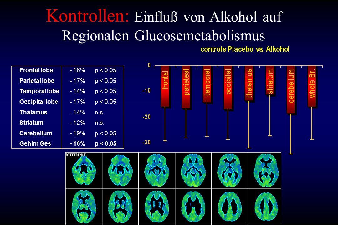 Kontrollen: Einfluß von Alkohol auf Regionalen Glucosemetabolismus Frontal lobe Parietal lobe Temporal lobe Occipital lobe Thalamus Striatum Cerebellu