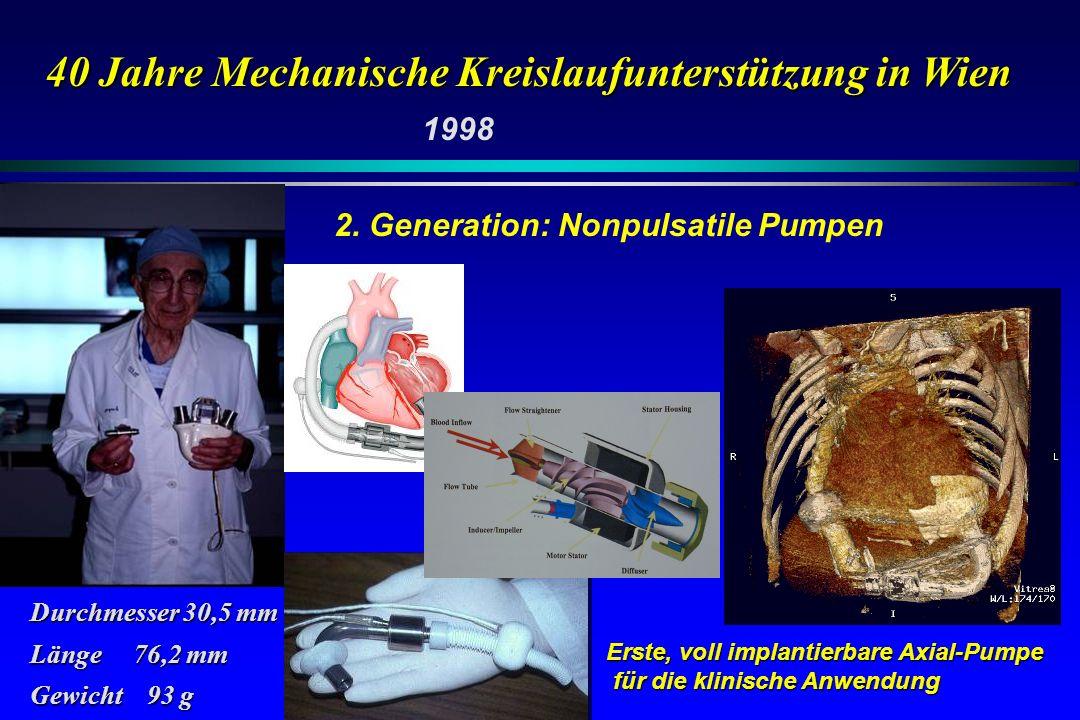 40 Jahre Mechanische Kreislaufunterstützung in Wien Erste, voll implantierbare Axial-Pumpe für die klinische Anwendung für die klinische Anwendung Dur