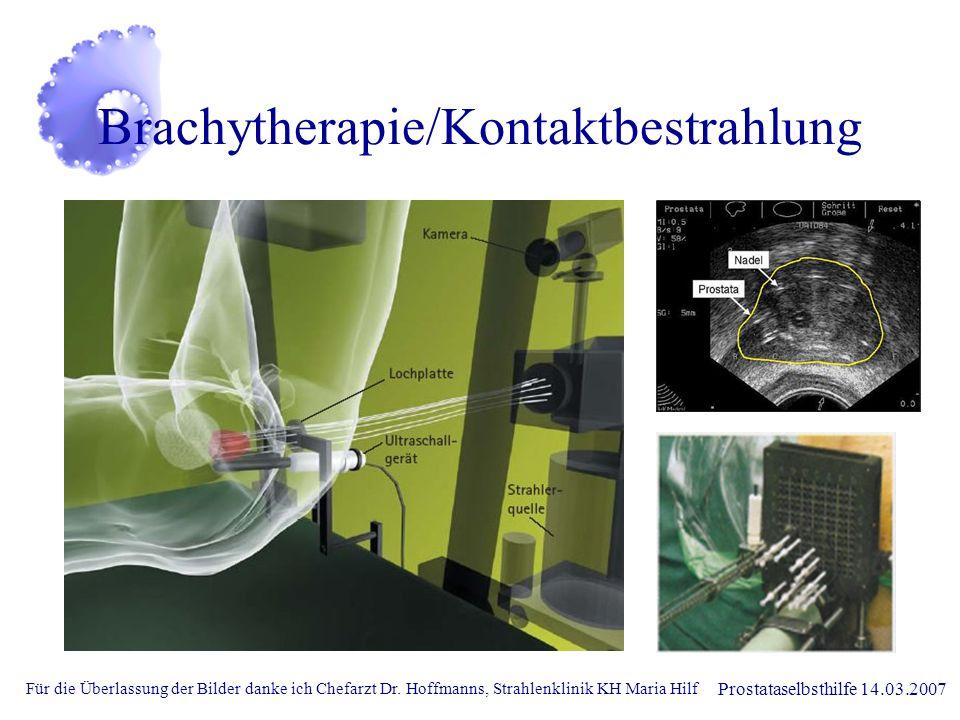 Prostataselbsthilfe 14.03.2007 Brachytherapie/Kontaktbestrahlung