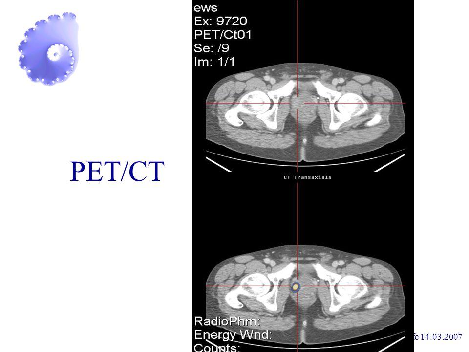 Prostataselbsthilfe 14.03.2007 Diagnostik digitale Untersuchung PSA PET/CT Biopsie Lymphadenektomie Knochenszintigramm + Röntgen der Lunge
