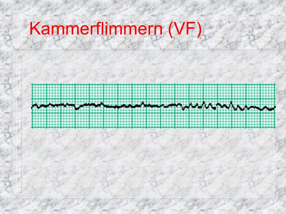pulslose ventrikuläre Tachykardie Sonderform Tordsade des Pointes (TdP) häufig mit Puls.