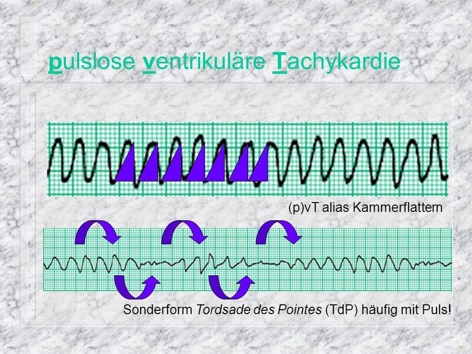 pulslose elektrische Aktivität Beispiel: sterbendes Herz peA alias EMD elektro-mechanische Dissoziation alias elektro-mechanische Entkoppelung
