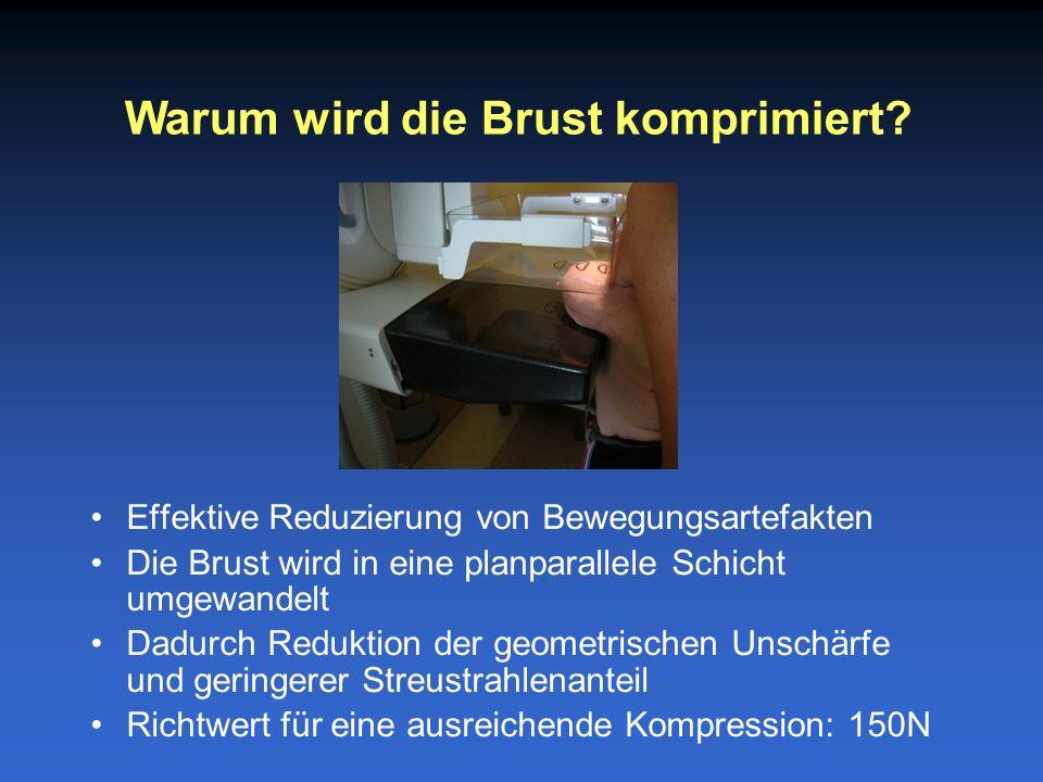 Effektive Reduzierung von Bewegungsartefakten Die Brust wird in eine planparallele Schicht umgewandelt Dadurch Reduktion der geometrischen Unschärfe und geringerer Streustrahlenanteil Richtwert für eine ausreichende Kompression: 150N Warum wird die Brust komprimiert