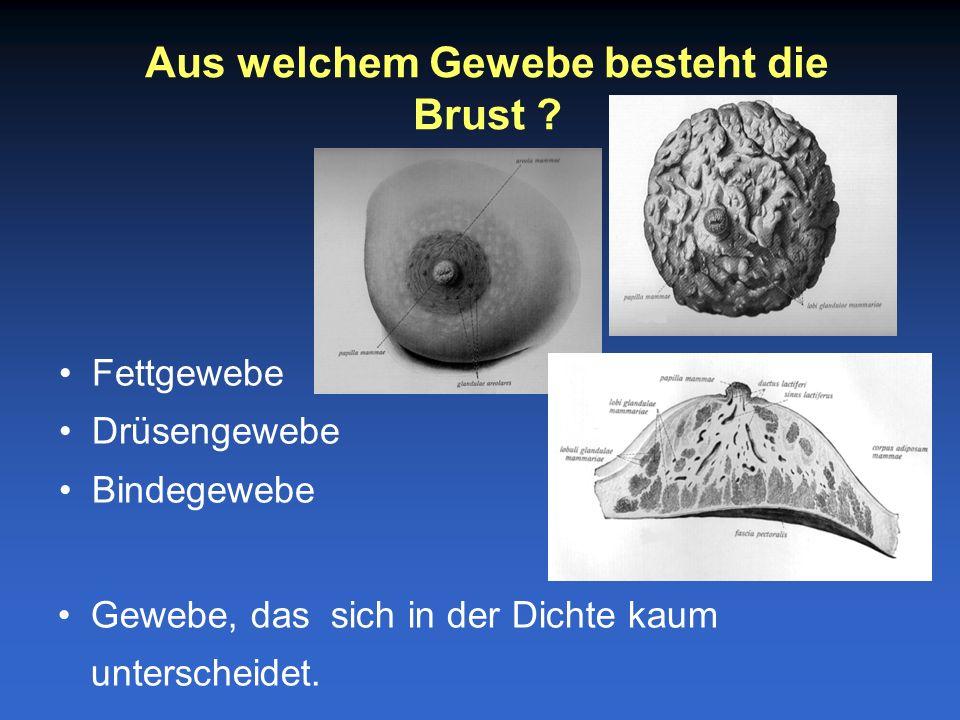 Fettgewebe Drüsengewebe Bindegewebe Aus welchem Gewebe besteht die Brust .