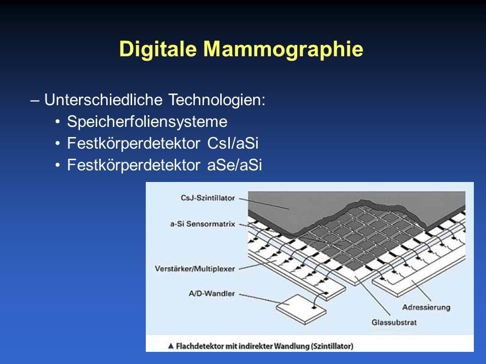 Digitale Mammographie –Unterschiedliche Technologien: Speicherfoliensysteme Festkörperdetektor CsI/aSi Festkörperdetektor aSe/aSi