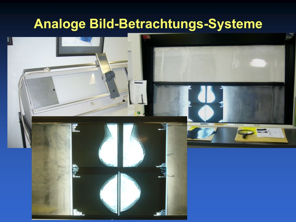 Analoge Bild-Betrachtungs-Systeme