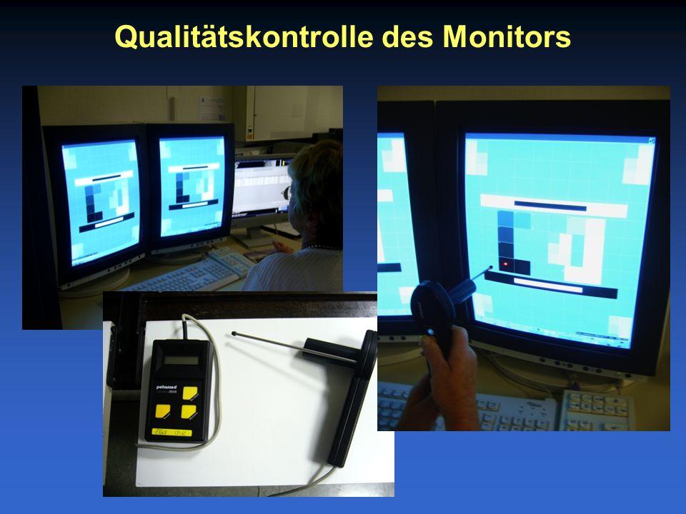 Qualitätskontrolle des Monitors