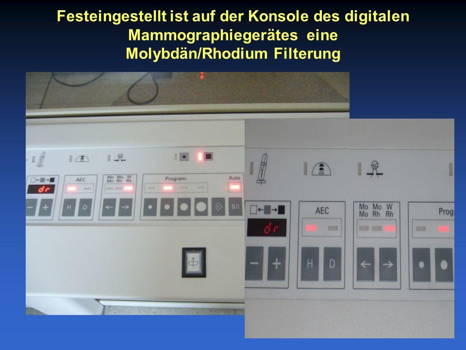 Festeingestellt ist auf der Konsole des digitalen Mammographiegerätes eine Molybdän/Rhodium Filterung