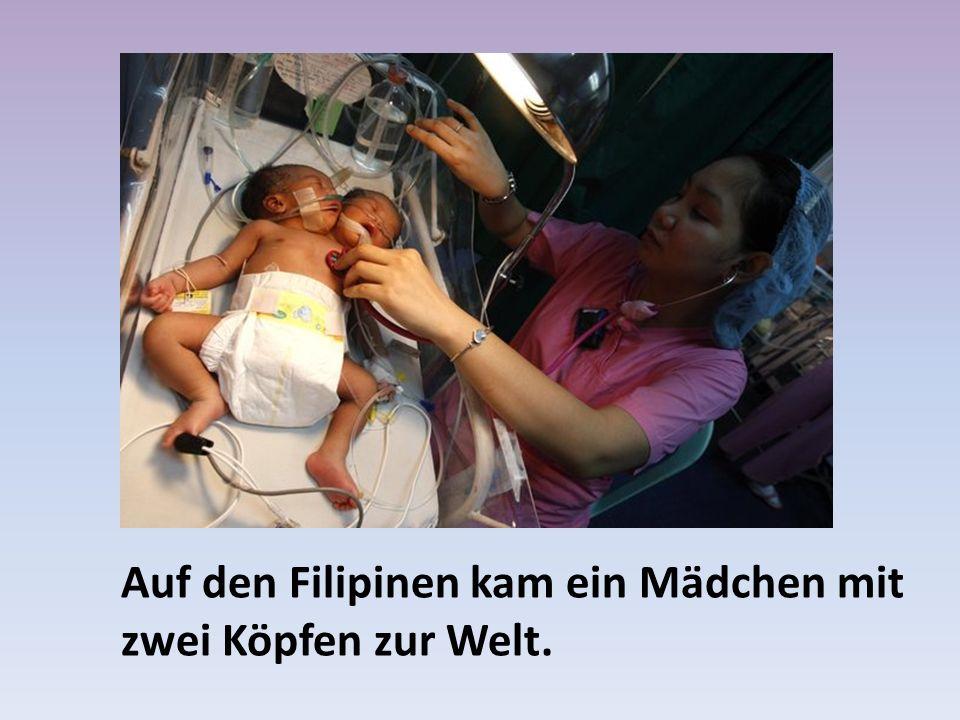 Auf den Filipinen kam ein Mädchen mit zwei Köpfen zur Welt.