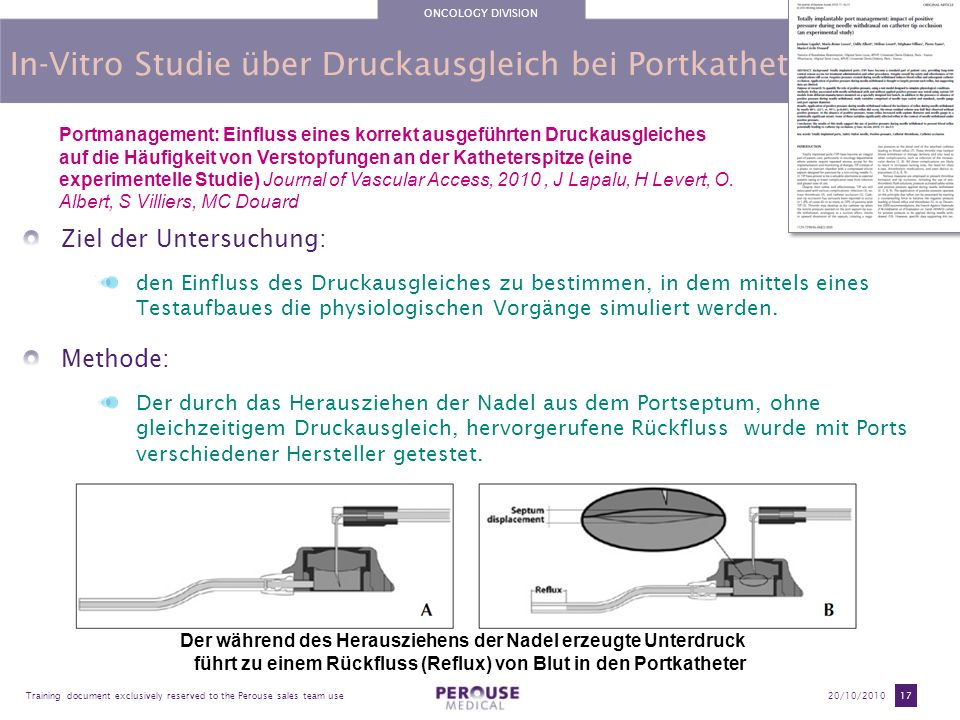 ONCOLOGY DIVISION Training document exclusively reserved to the Perouse sales team use20/10/2010 17 In-Vitro Studie über Druckausgleich bei Portkathet