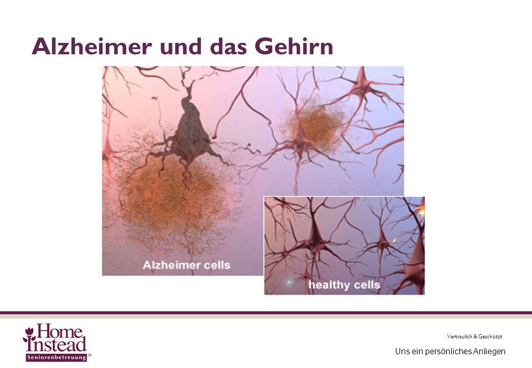 Vertraulich & Geschützt Uns ein persönliches Anliegen Alzheimer und das Gehirn