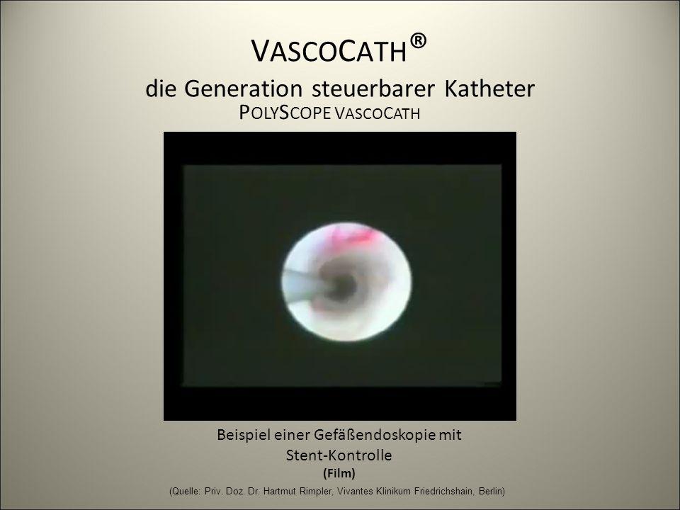 V ASCO C ATH ® die Generation steuerbarer Katheter Beispiel einer Gefäßendoskopie mit Stent-Kontrolle (Film) P OLY S COPE V ASCO C ATH (Quelle: Priv.