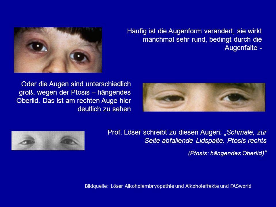 Häufig ist die Augenform verändert, sie wirkt manchmal sehr rund, bedingt durch die Augenfalte - Oder die Augen sind unterschiedlich groß, wegen der P