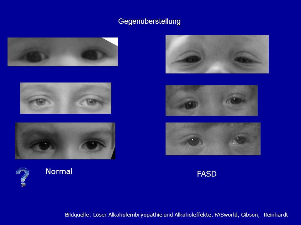 Gegenüberstellung Bildquelle: Löser Alkoholembryopathie und Alkoholeffekte, FASworld, Gibson, Reinhardt Normal FASD