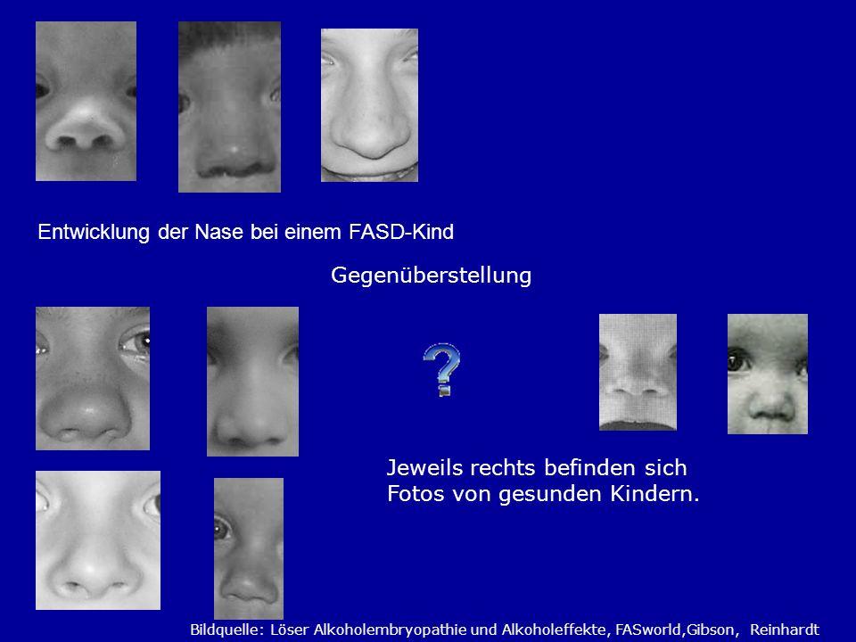 Entwicklung der Nase bei einem FASD-Kind Gegenüberstellung Jeweils rechts befinden sich Fotos von gesunden Kindern. Bildquelle: Löser Alkoholembryopat