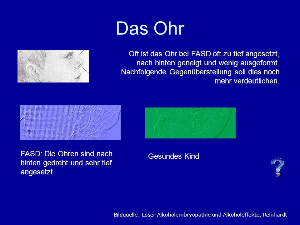 Das Ohr Oft ist das Ohr bei FASD oft zu tief angesetzt, nach hinten geneigt und wenig ausgeformt. Nachfolgende Gegenüberstellung soll dies noch mehr v