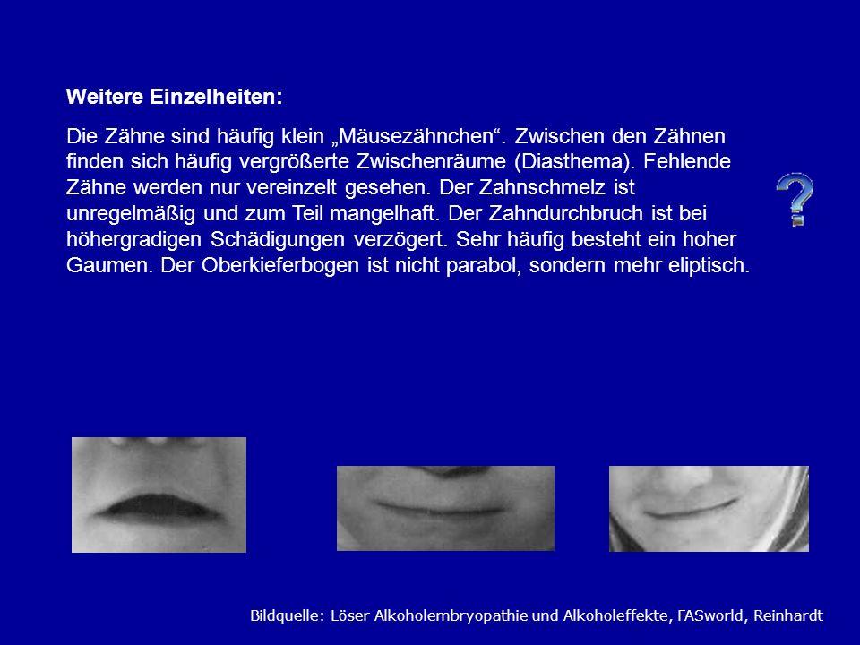 Weitere Einzelheiten: Die Zähne sind häufig klein Mäusezähnchen. Zwischen den Zähnen finden sich häufig vergrößerte Zwischenräume (Diasthema). Fehlend