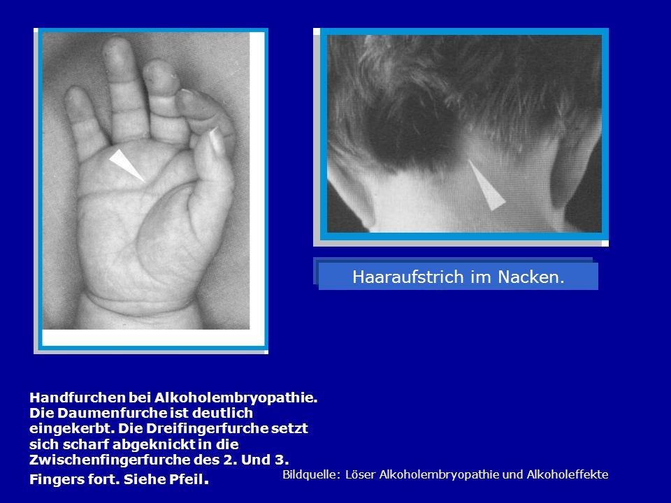 Handfurchen bei Alkoholembryopathie. Die Daumenfurche ist deutlich eingekerbt. Die Dreifingerfurche setzt sich scharf abgeknickt in die Zwischenfinger