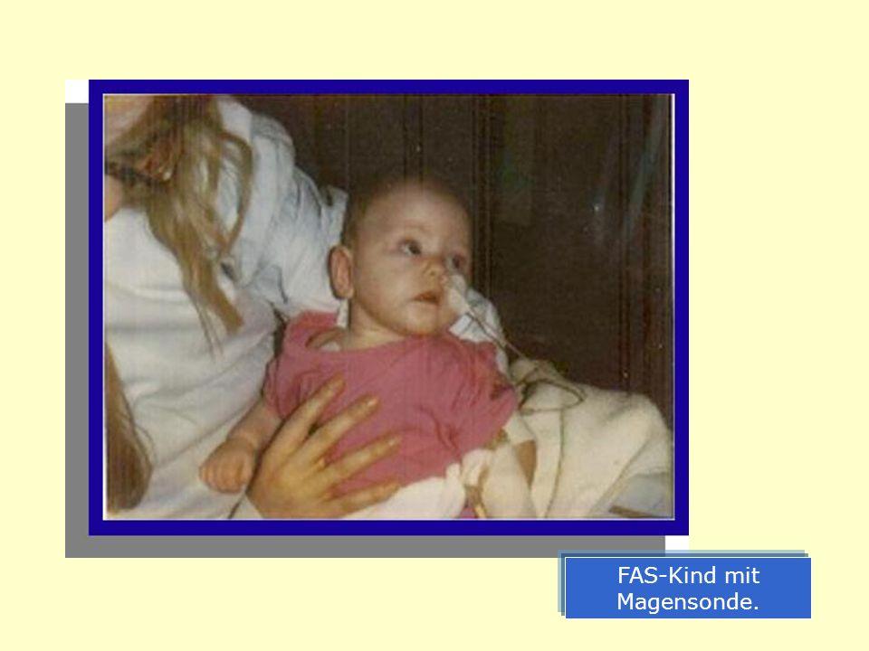 FAS-Kind mit Magensonde.