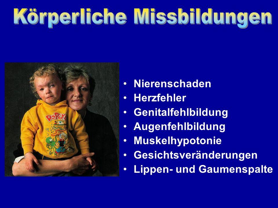Entwicklung der Nase bei einem FASD-Kind Gegenüberstellung Jeweils rechts befinden sich Fotos von gesunden Kindern.
