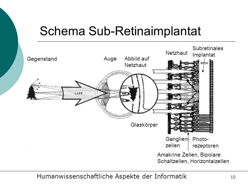 Humanwissenschaftliche Aspekte der Informatik 10 Schema Sub-Retinaimplantat Glaskörper Gegenstand AugeAbbild auf Netzhaut Netzhaut Subretinales Implan