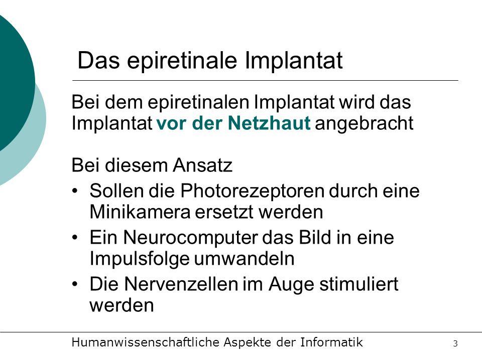 Humanwissenschaftliche Aspekte der Informatik 3 Das epiretinale Implantat Bei dem epiretinalen Implantat wird das Implantat vor der Netzhaut angebrach
