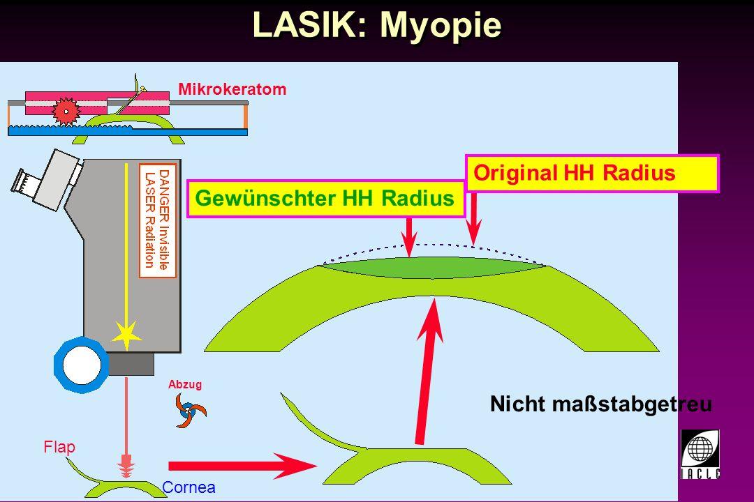 97781-108S.PPT LASIK: Hyperopie Nicht maßstabgetreu Cornea Flap Mikrokeratom Abzug Original HH Radius Gewünschter HH Radius Übergang