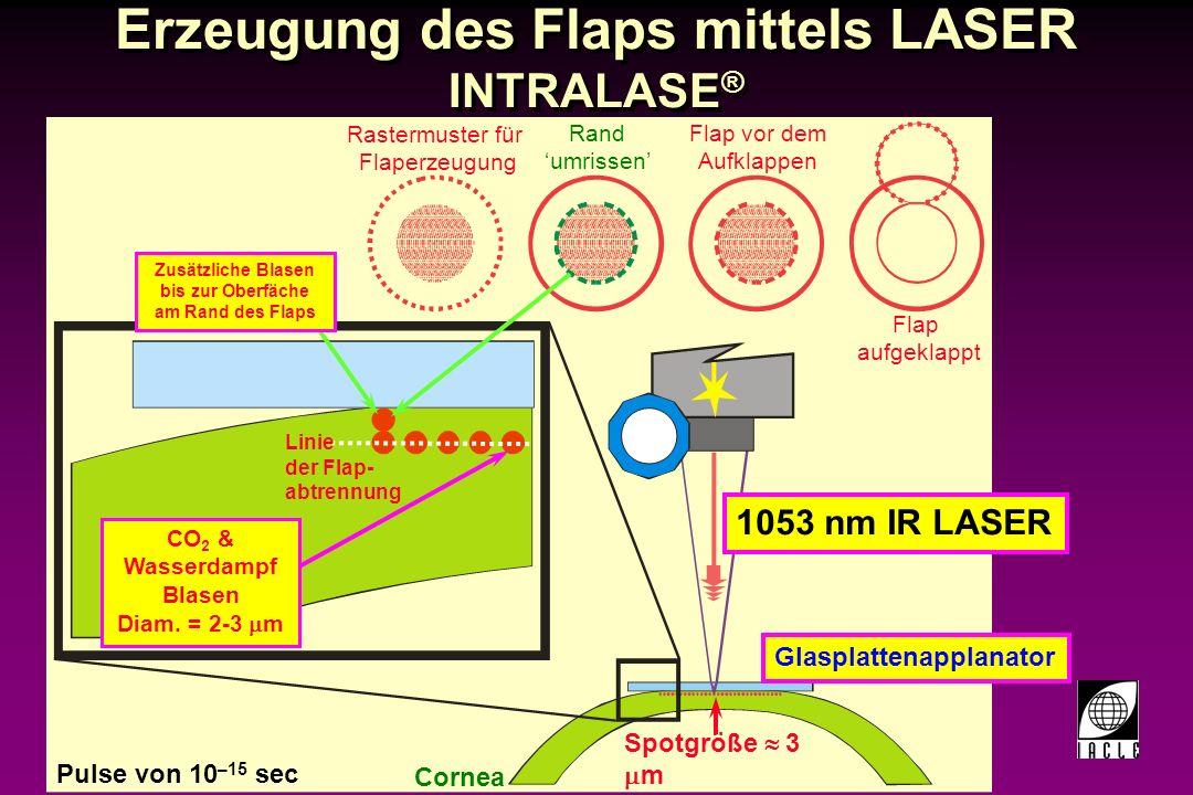 97781-129S.PPT LAser SubEpitheliale Keratomileusis (LASEK) Modifizierte Variante der PRK Epithelflap wird vor dem Aufklappen mit Alkohol aufgeweicht LASER-Ablation wird wie bei PRK durchgeführt dadurch: -Weniger Schmerz -Schnellere Verbesserung des Sehens Modifizierte Variante der PRK Epithelflap wird vor dem Aufklappen mit Alkohol aufgeweicht LASER-Ablation wird wie bei PRK durchgeführt dadurch: -Weniger Schmerz -Schnellere Verbesserung des Sehens