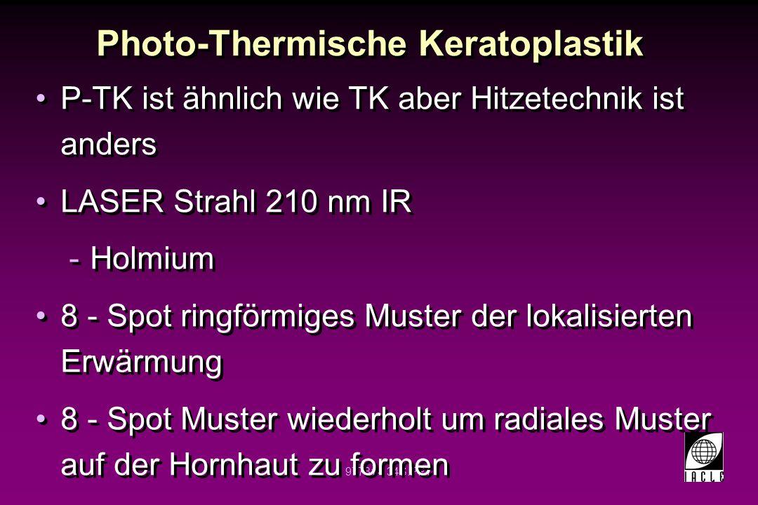 97781-135S.PPT Photo-Thermische Keratoplastik 8 - 32 Spots werden verwendet 0.15 - 0.