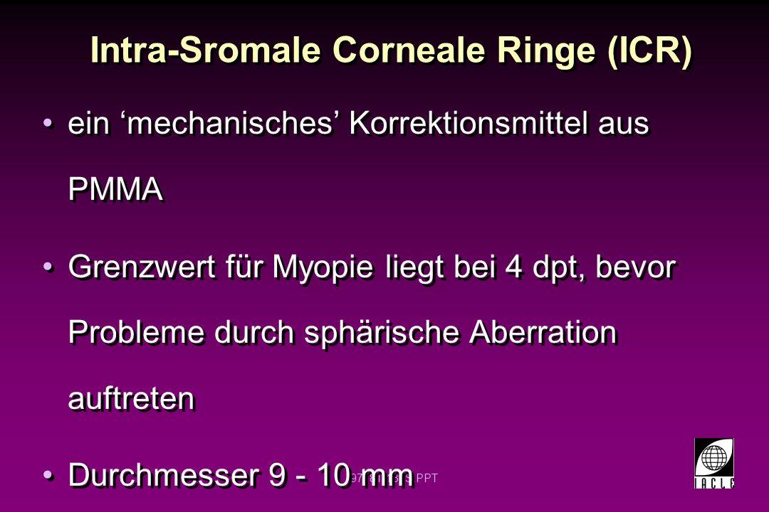 97781-140S.PPT Intra-Sromale Corneale Ringe (ICR) Dickenbereich -0.2 - 0.45 mm -Bestimmt den refraktiven Effekt Wird in Peripherie des Stromas eingesetzt -Zwei drittel der Hornhauttiefe -Kein einfaches Verfahren Vollkreis, Form eines geteilten Rings (ein Stück) oder zwei ( Segmente Dickenbereich -0.2 - 0.45 mm -Bestimmt den refraktiven Effekt Wird in Peripherie des Stromas eingesetzt -Zwei drittel der Hornhauttiefe -Kein einfaches Verfahren Vollkreis, Form eines geteilten Rings (ein Stück) oder zwei ( Segmente
