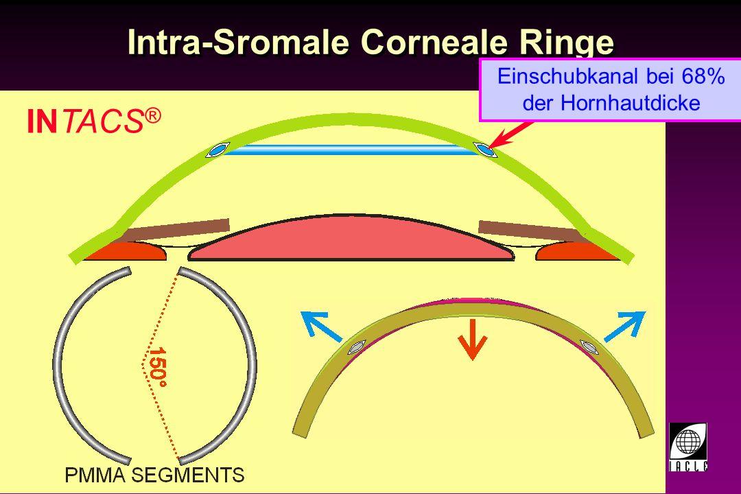 97781-142S.PPT Intra-Sromale Corneale Ringe intacs ® Indikationen Reduktion oder Beseitigung leichter Myopie (–1.00 to –3.00 dpt sphärisches Äquivalent bei HSA 0) 21 Jahre alt oder älter Dokumentierte Stabilität der Refraktion ( 0.50 dpt in den letzten 12 Monaten) Astigmatismus von 1.00 dpt Reduktion oder Beseitigung leichter Myopie (–1.00 to –3.00 dpt sphärisches Äquivalent bei HSA 0) 21 Jahre alt oder älter Dokumentierte Stabilität der Refraktion ( 0.50 dpt in den letzten 12 Monaten) Astigmatismus von 1.00 dpt