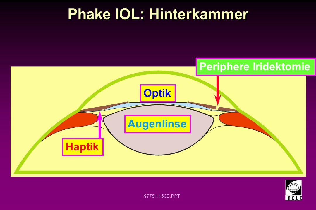 97781-151S.PPT Phake IOL Eine Hinterkammer IOL die vor der Augenlinse positioniert wird um eine Ametropie zu korrigieren Astigmatische Korrektion möglich Verfügbar in Plus- und Minusstärken Vermutlich bei hohen Fehlern besser geeignet Manchmal auch als implantierbare Kontaktlinse (ICL) bezeichnet Eine Hinterkammer IOL die vor der Augenlinse positioniert wird um eine Ametropie zu korrigieren Astigmatische Korrektion möglich Verfügbar in Plus- und Minusstärken Vermutlich bei hohen Fehlern besser geeignet Manchmal auch als implantierbare Kontaktlinse (ICL) bezeichnet