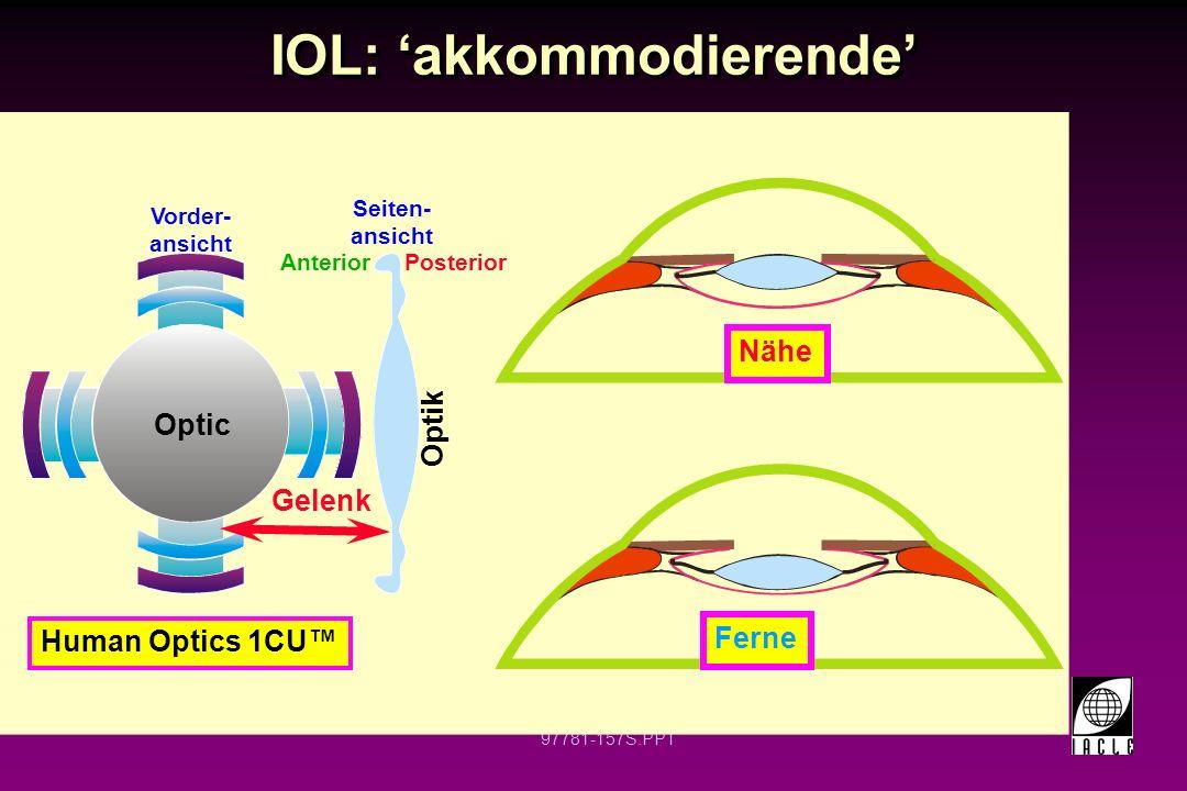 97781-158S.PPT IOL: akkommodierende Tek-Clear 5 mm Optik Nähe Ferne