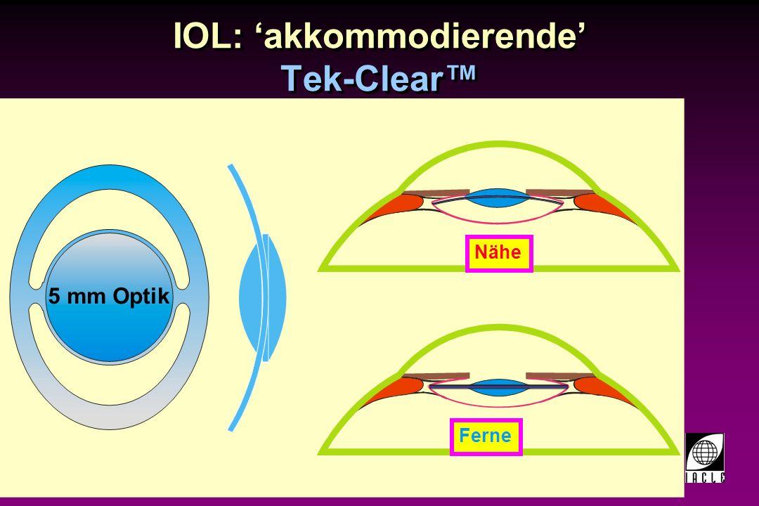 97781-159S.PPT IOL: akkommodierende Sarfarazi Elliptical Accommodative IOL (EAIOL) NäheFerne Anterior Posterior + Optik – Optik Haptik Anterior Posterior Pupille Iris