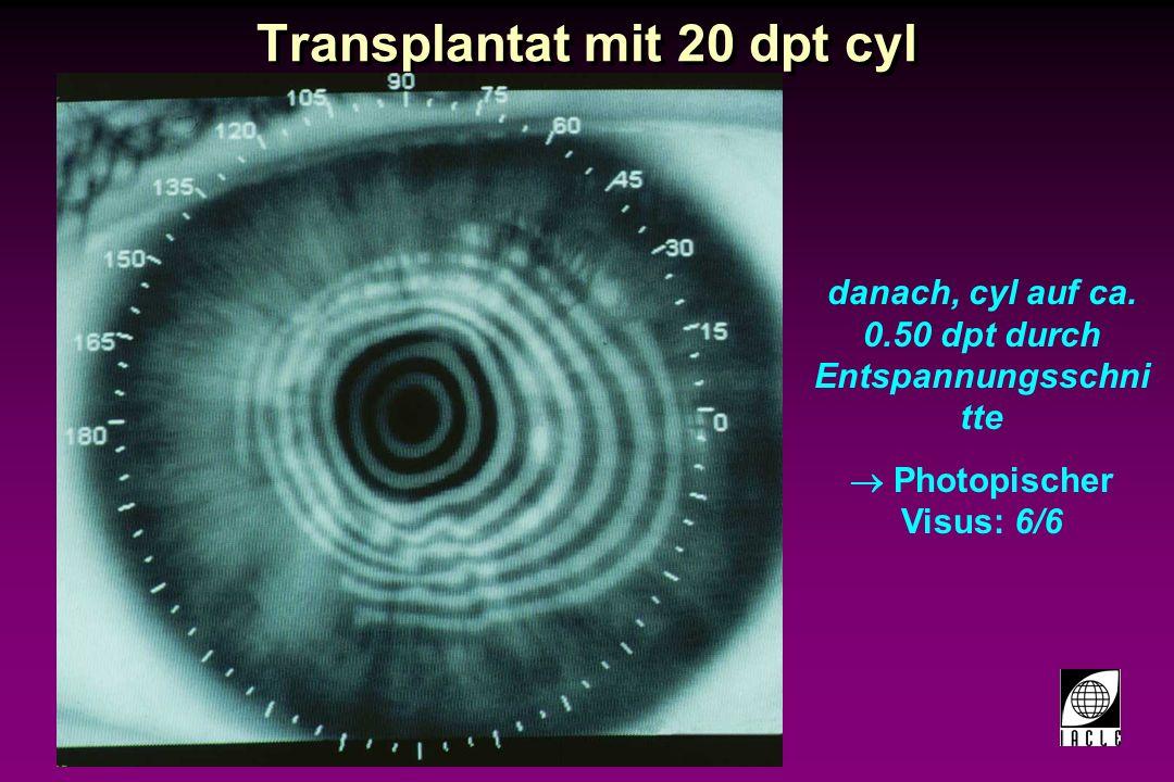 97781-43S.PPT PK: post-transplantäre Einschnitte Einschnitte Spender Wirt Stärkere Krümmung als Transplantatwunde.