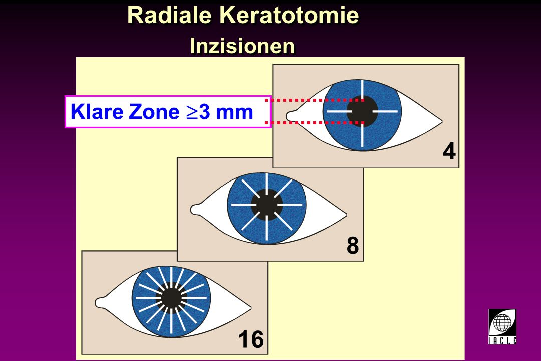 97781-50S.PPT Radiale Keratotomie Inzisionen 16 8 4 Klare Zone 3 mm