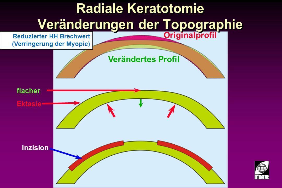 97781-53S.PPT Radiale Keratotomie Faktoren, die für den Erfolg ausschlaggebend sind: -Durchmesser der zentralen klaren Zone -Alter des Patienten -Tiefe der Einschnitte Faktoren, die für den Erfolg ausschlaggebend sind: -Durchmesser der zentralen klaren Zone -Alter des Patienten -Tiefe der Einschnitte