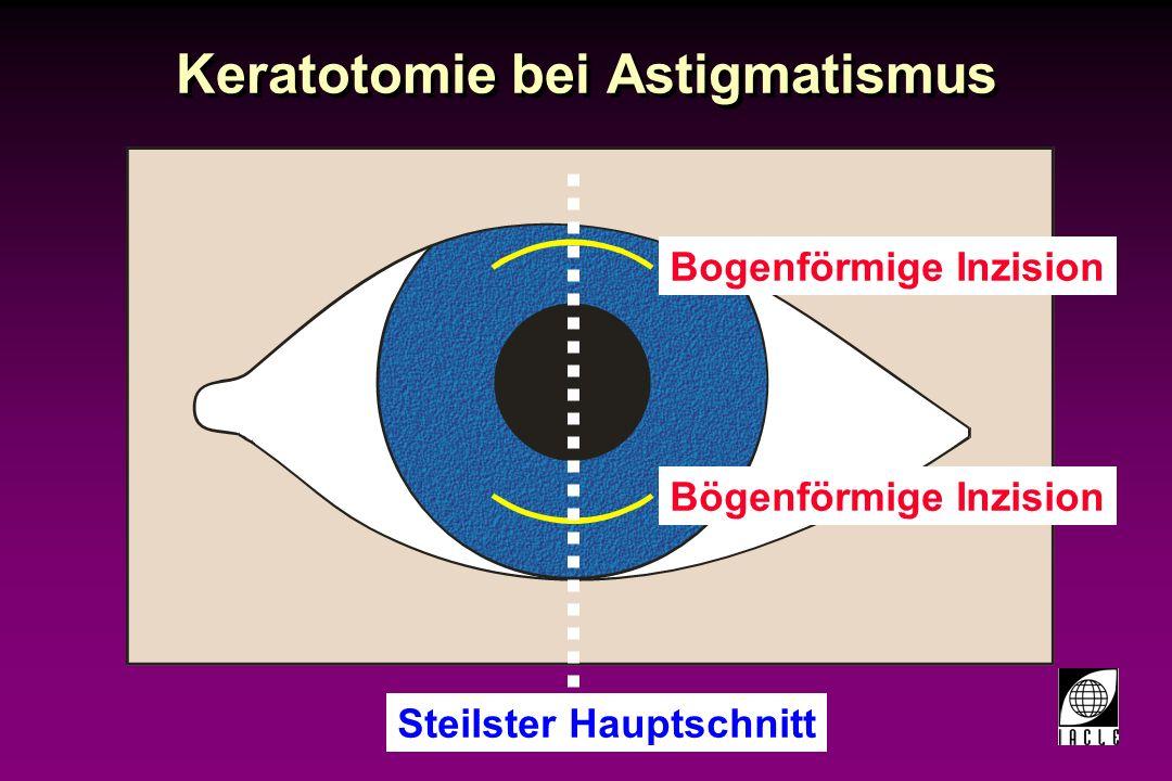 97781-66S.PPT Keratotomie bei Astigmatismus Bogenförmige Inzision Inzisionstiefe: 80-90% der Hornhautdicke