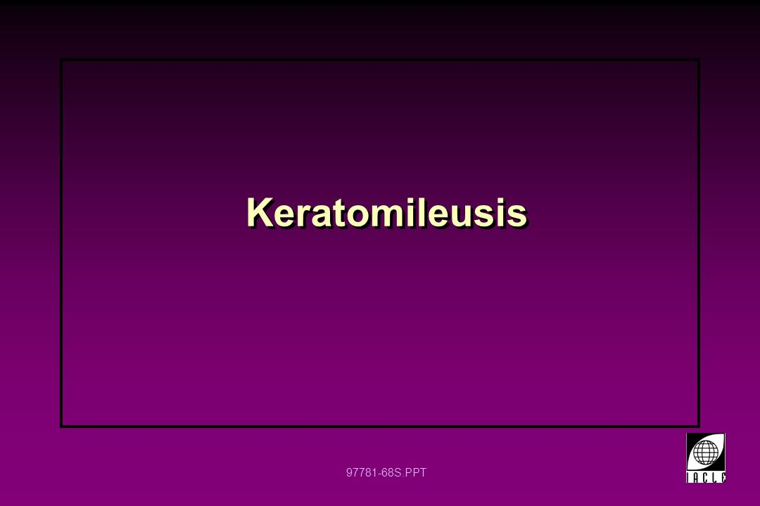 97781-68S.PPT Keratomileusis