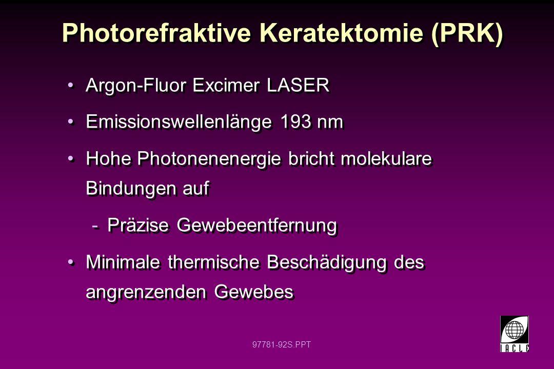 97781-93S.PPT PRK: Myopie Cornea Originaler HH Radius Gewünschter HH Radius Abgetragenes Gewebe Rauchabzug Nicht maßstabgetreu