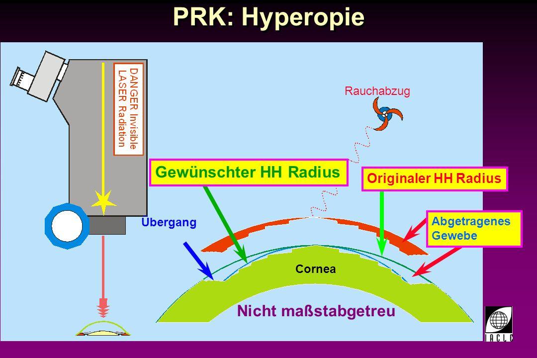 97781-95S.PPT Breitstrahl Excimer Laser Höheres Energieniveau Hohe Abtragungsgeschwindigkeit genauere Ablation Einfach kalibrierbar Höheres Energieniveau Hohe Abtragungsgeschwindigkeit genauere Ablation Einfach kalibrierbar Vorteile