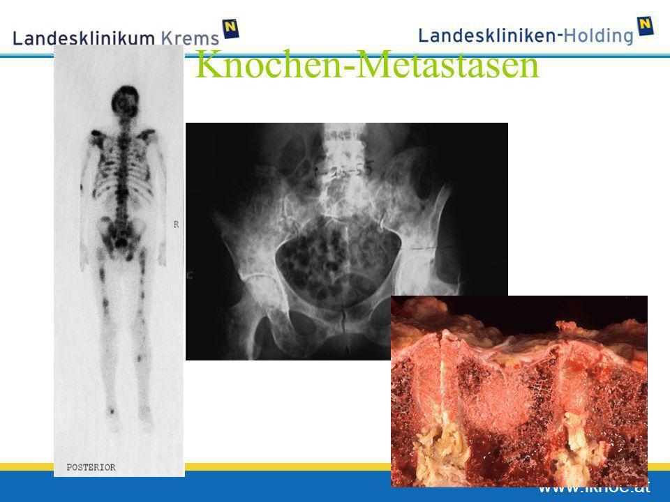 www.lknoe.at Knochen-Metastasen