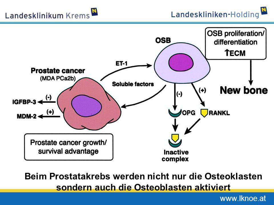 www.lknoe.at Beim Prostatakrebs werden nicht nur die Osteoklasten sondern auch die Osteoblasten aktiviert