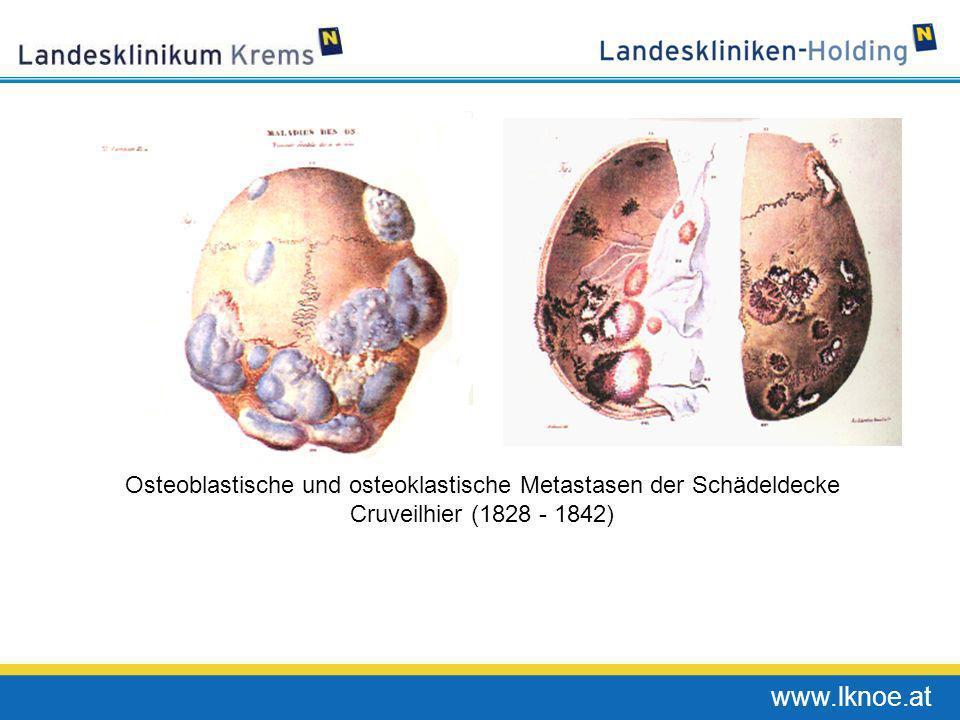 www.lknoe.at Osteoblastische und osteoklastische Metastasen der Schädeldecke Cruveilhier (1828 - 1842)