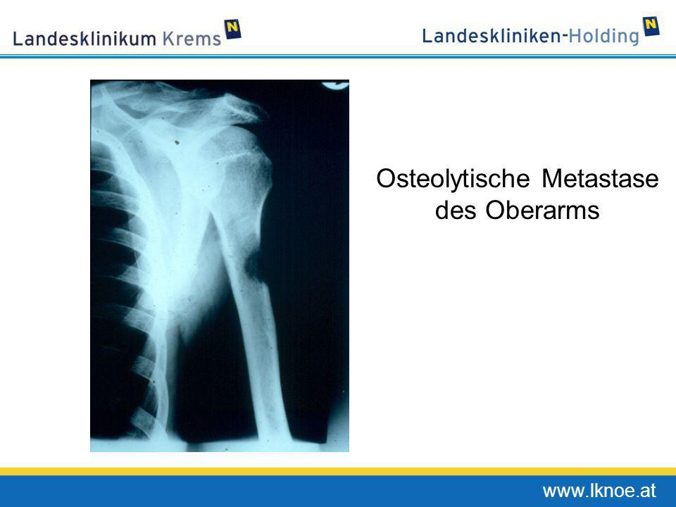www.lknoe.at Osteolytische Metastase des Oberarms