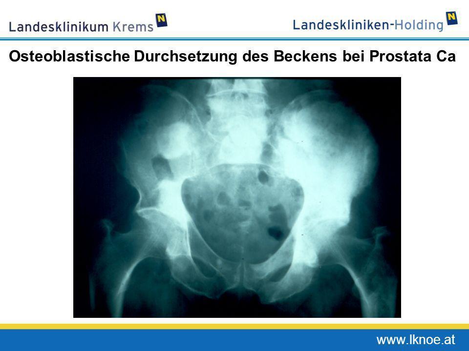 www.lknoe.at Osteoblastische Durchsetzung des Beckens bei Prostata Ca