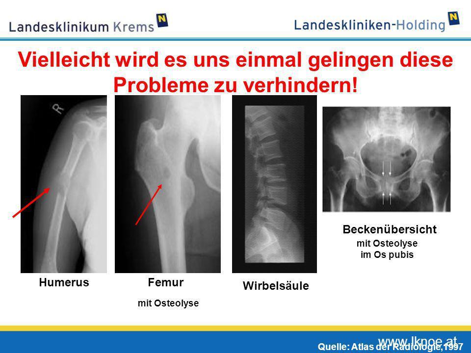 www.lknoe.at HumerusFemur Wirbelsäule Beckenübersicht mit pathol. Fraktur bei Osteolyse mit Osteolyse im Os pubis Quelle: Atlas der Radiologie,1997 Vi