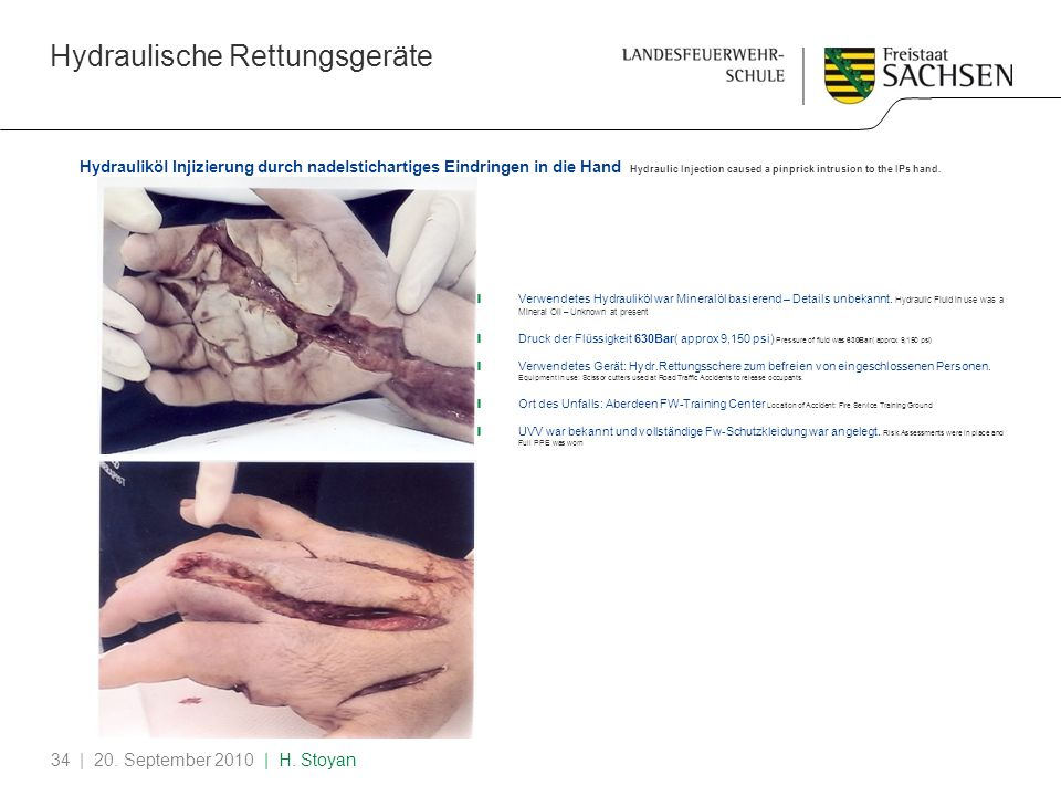 Hydraulische Rettungsgeräte | 20. September 2010 | H. Stoyan34 Hydrauliköl Injizierung durch nadelstichartiges Eindringen in die Hand Hydraulic Inject